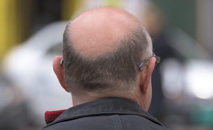 La lista di maschere per crescita di capelli
